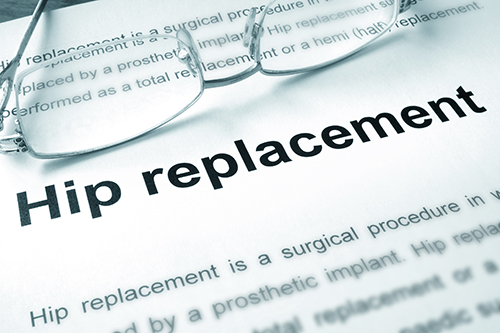 hip replacement definition with glasses