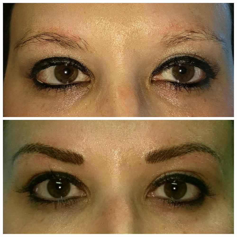 Permanent Makeup Plastic Surgery Skin Specialists Baycare Clinic