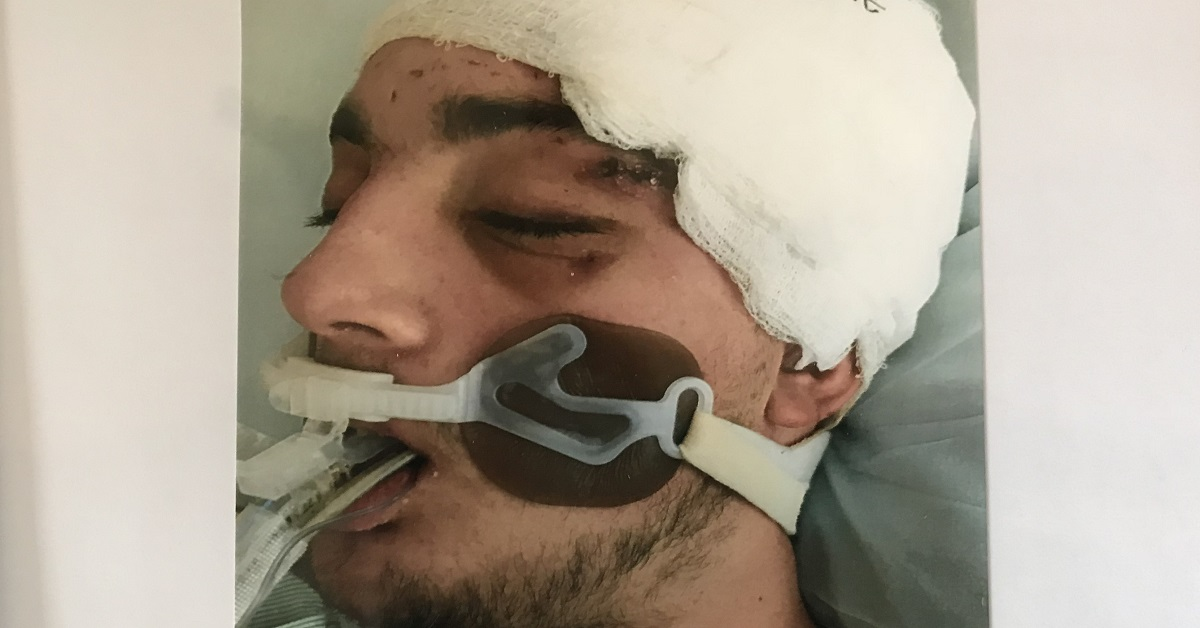 Trent Knuppel spent 11 days in a coma after brain surgery.