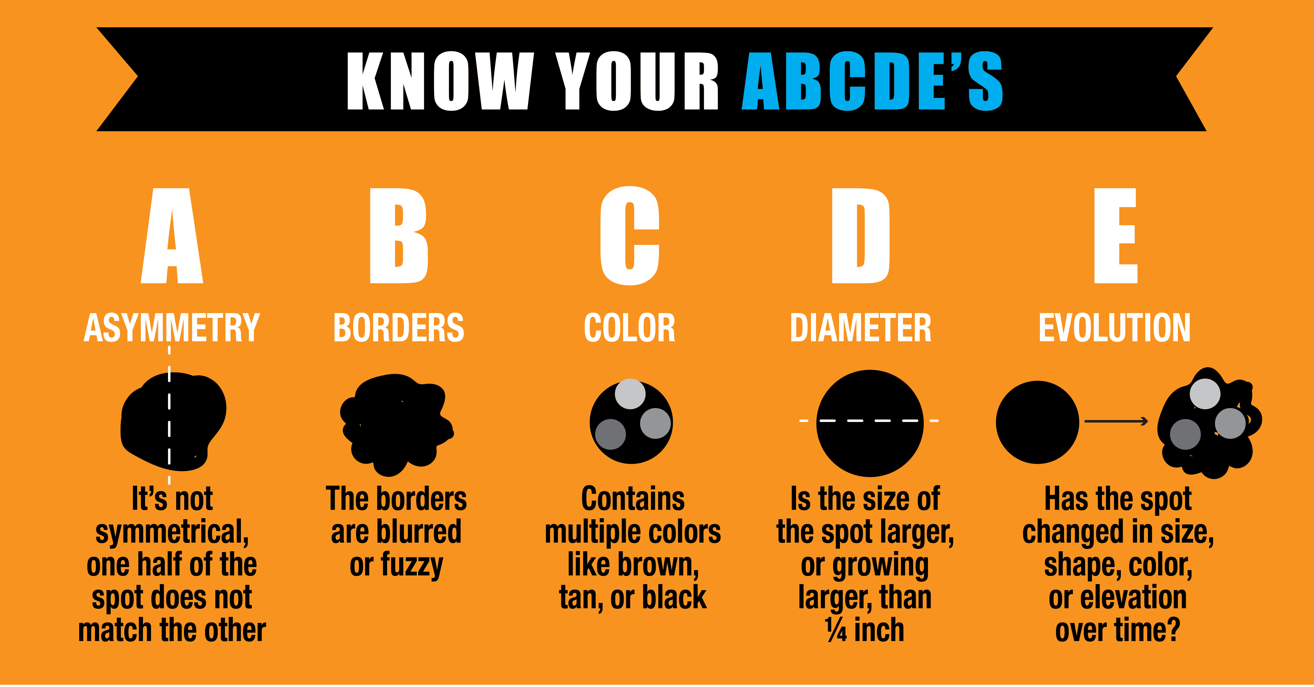 Nick Grimm PA-C, dermatology services provider, recommends knowing your ABCDEs: asymmetry, border, color, diameter and evolution, when it comes to identifying changes in your skin.