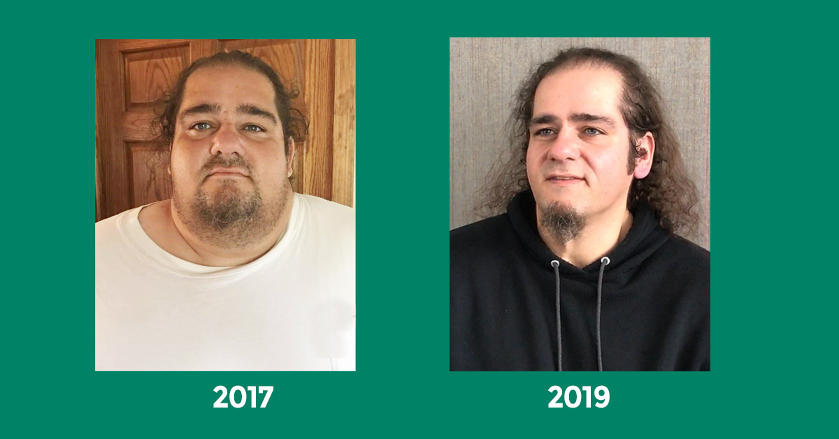 Kevin Botessi before and after weight loss surgery