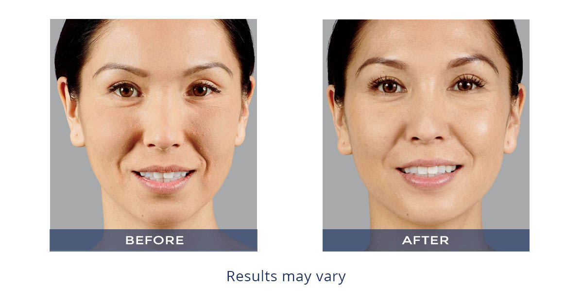 Juvederm Voluma XC before and after girl smiling