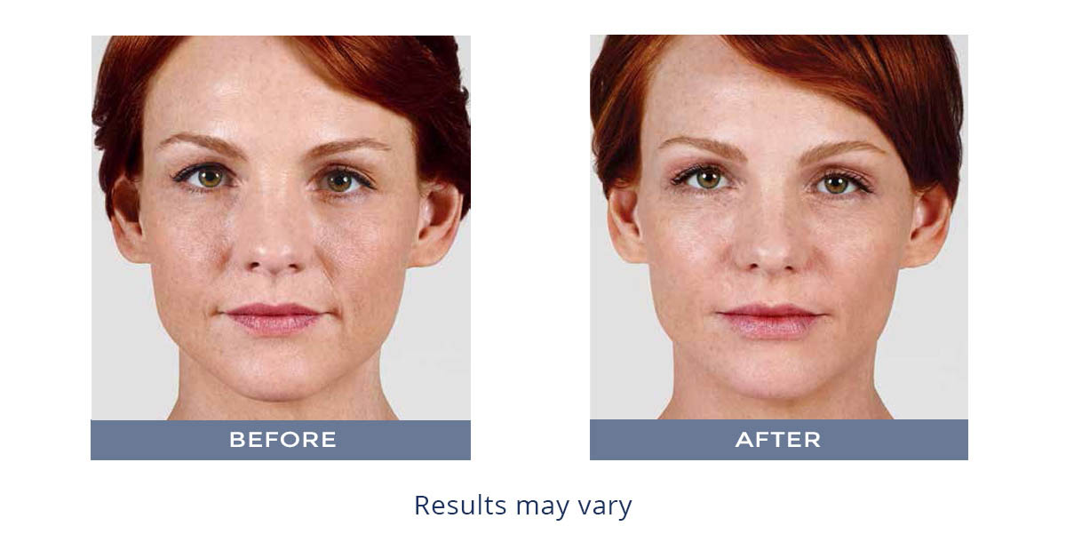 Fillers   Plastic Surgery & Skin Specialists   BayCare Clinic