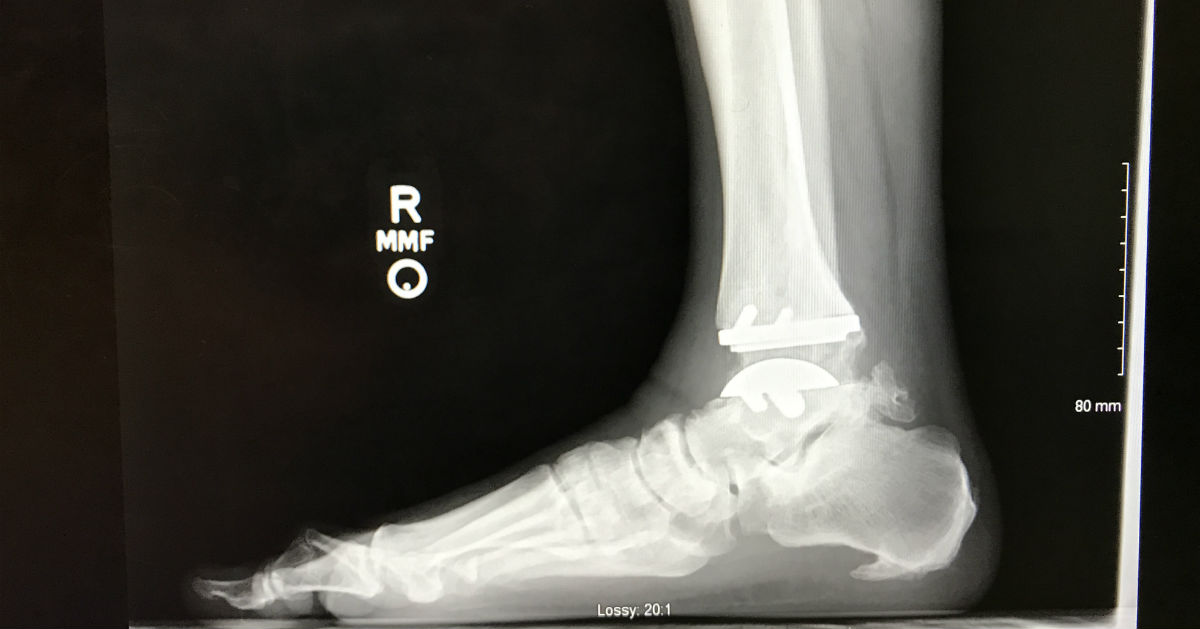 Matt Stevenson x-ray of ankle and foot