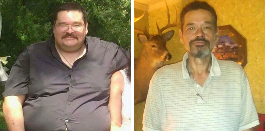 Alan's story: '2nd lease on life' with weight-loss surgery