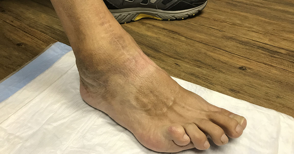 Joe Dugan's foot after total ankle replacement surgery performed by Jason George DeVries DPM